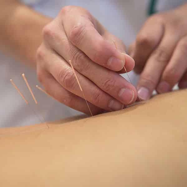 Terapia ad onde d'urto e fisioterapia a Biella